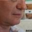 【ウルセラ】あご下のたるみ改善症例写真upです。リフトアップに効果抜群!/美容整形外科「ピュアメディカルクリニック」/奈良・大阪・京都・三重・和歌山