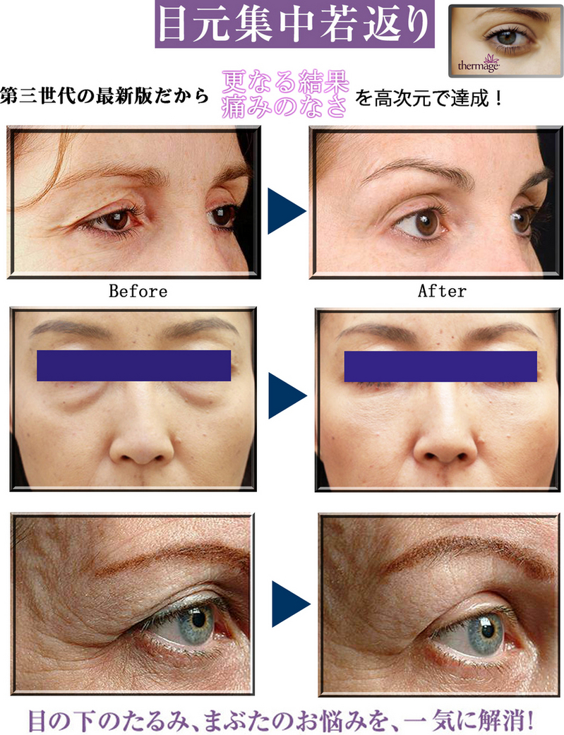 Thermage-eye2.jpgのサムネール画像