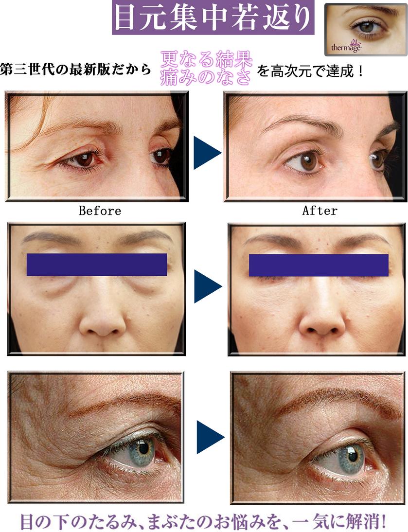 【サーマアイ】目の下(目元)の乾燥・小皺・くま・たるみの改善治療/美容整形外科「ピュアメディカルクリニック」