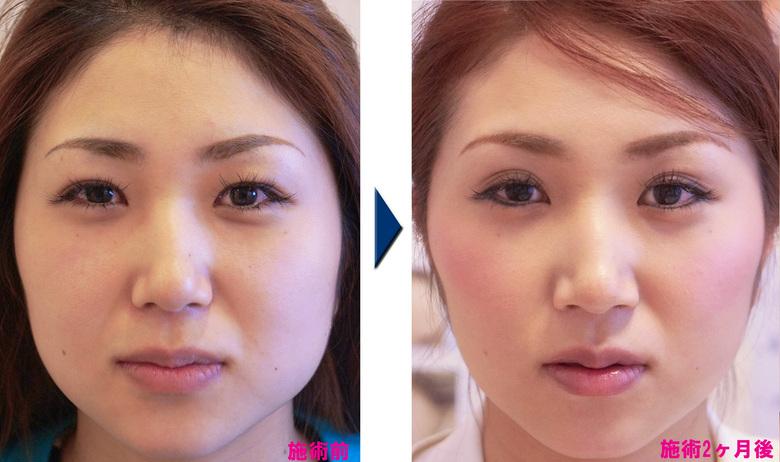 エラボツリヌストキシン製剤で小顔矯正効果/ピュアメディカルクリニック