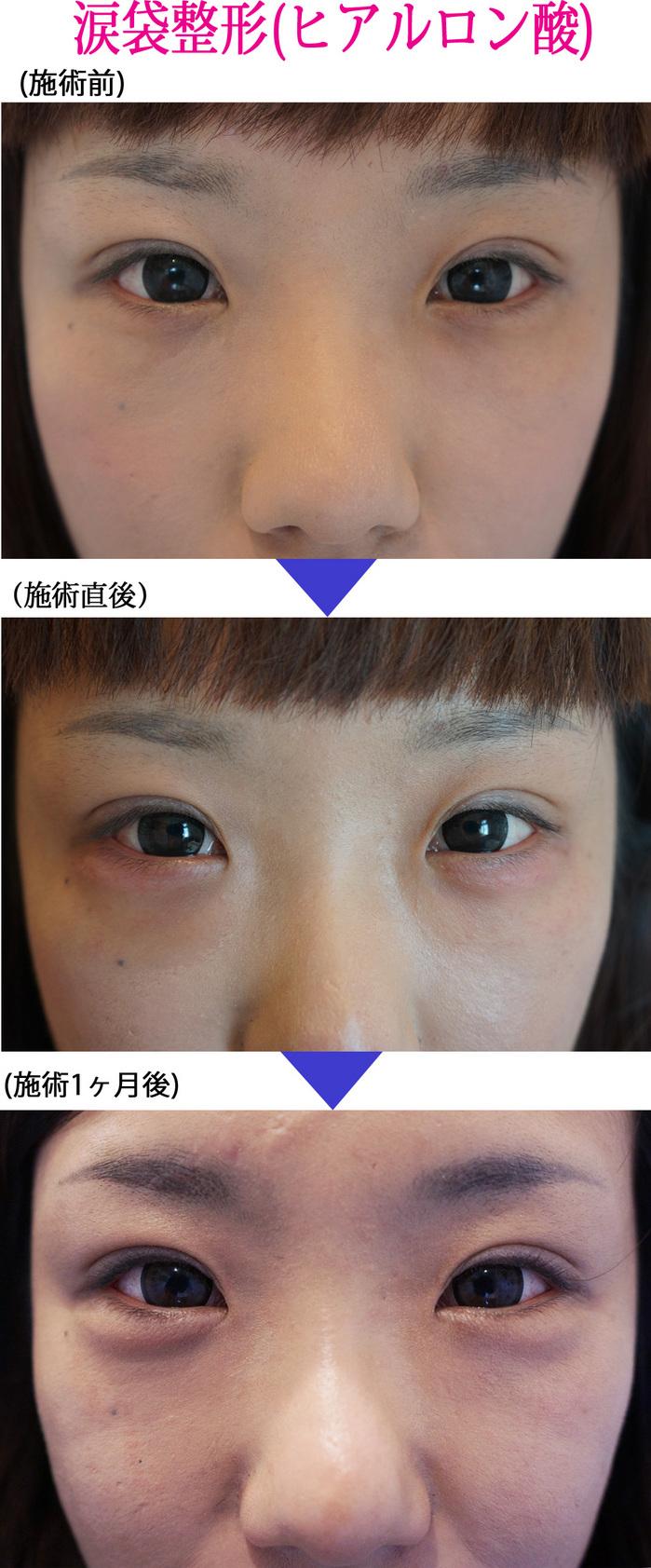 涙袋の整形で魅力的な目に//美容整形外科ピュアメディカルクリニック 奈良・大阪・京都・三重・和歌山