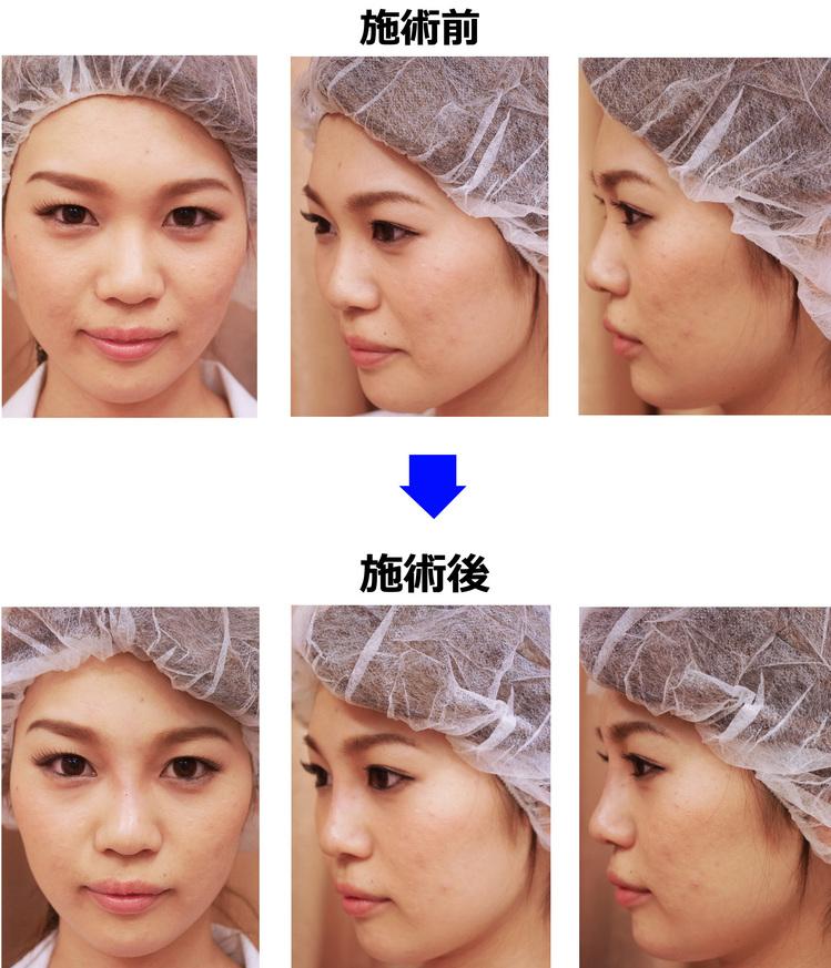 高く整った鼻筋にヒアルロン酸注入/美容整形外科ピュアメディカルクリニック/奈良・大阪・京都・和歌山・三重