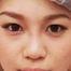 きれいに通った高い鼻筋に【鼻筋ヒアルロン酸】/美容整形外科ピュアメディカルクリニック 奈良・大阪・京都・三重・和歌山