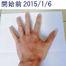 アトピー性皮膚炎治療モニター画像22(腕・手の赤味・かゆみ改善)!レイドラテ・ラ・ポー(旧アトプロテクト)[ダチョウ卵黄ジェル]