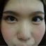 目頭切開、瞼の脂肪除去の全切開の症例です/ぱっちりきれいな二重に