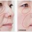 気になるほうれい線に是非!ヒアルロン酸注入/美容外科・皮膚科ピュアメディカルクリニック 奈良・関西