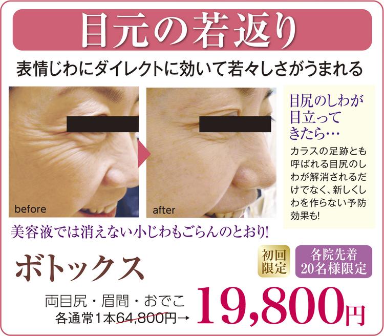 memoto-201601.jpg