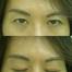 ☆顔の左右差:二重編☆(by ピュアクリニックDr木幡 /奈良・東大阪・京都・三重・和歌山)