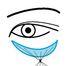 ☆目の下のクマ治療:ヒアルロン酸VSコンデンスリッチ脂肪☆奈良・東大阪・京都・三重・和歌山