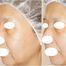 スレッドリフトモニター写真 /美容外科エステサロンフィットネス奈良大阪京都三重和歌山
