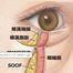ヒアルロン酸によるタルミ改善の考え方 /美容外科エステサロンフィットネス奈良大阪京都三重和歌山