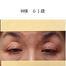お客様症例より..眉下リフトとトータルリフト /美容外科皮膚科 奈良大阪京都三重和歌山