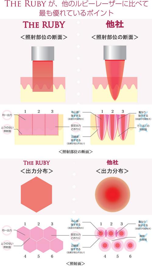 シミ取り治療は美容外科皮膚科ピュアメディカルクリニック奈良