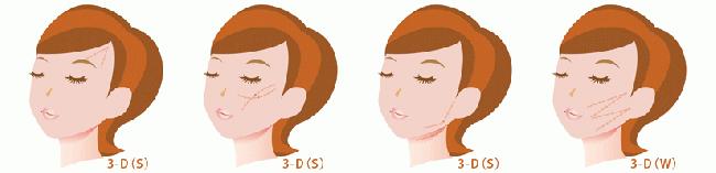 たるみ治療3Dリフト 美容外科ピュアメディカルクリニック奈良