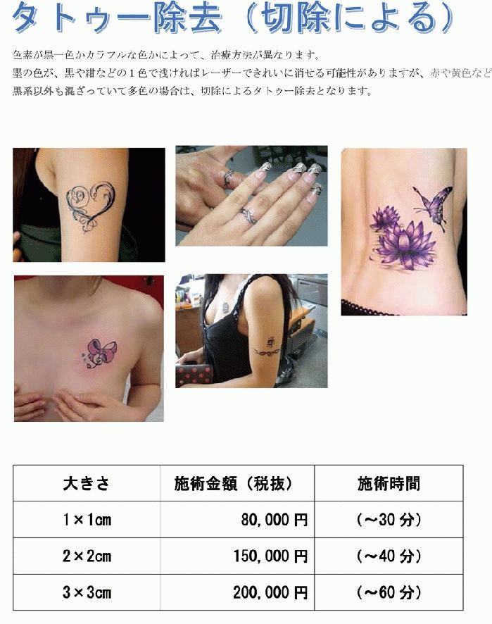 tatoo-jyokyo-s1.jpg
