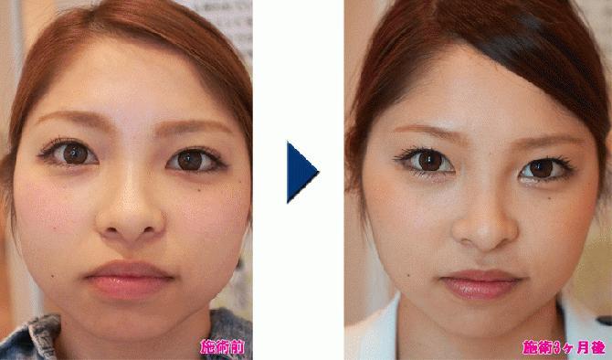 女性の顔のエラの張りはどうして起こる?原因から抑制方法を分析 ...