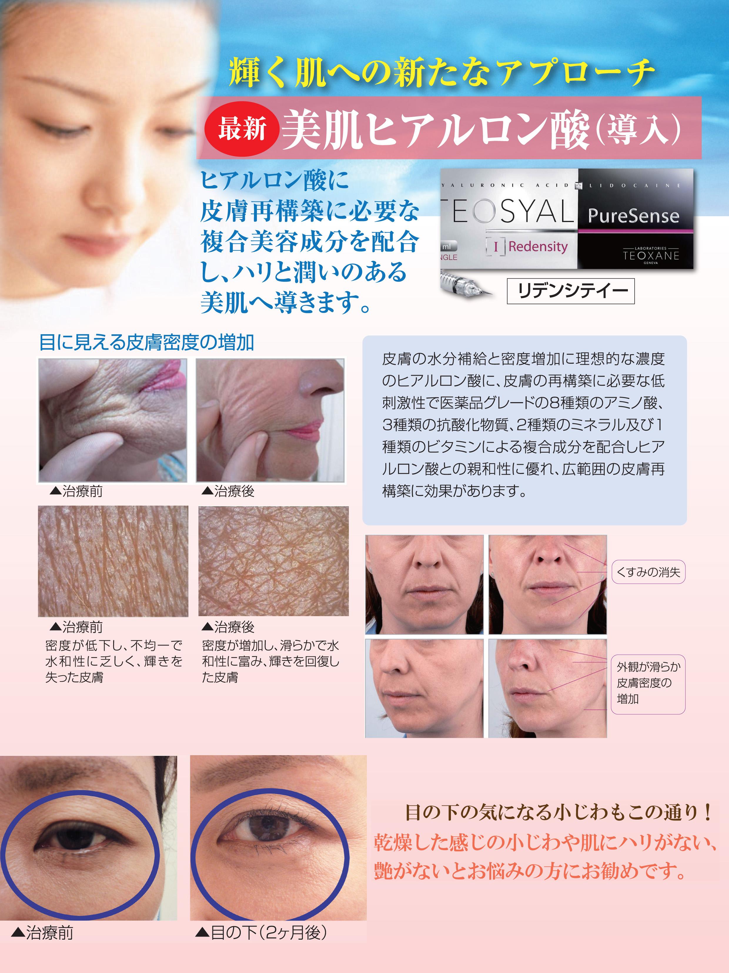 bihada-hiaru2.jpg