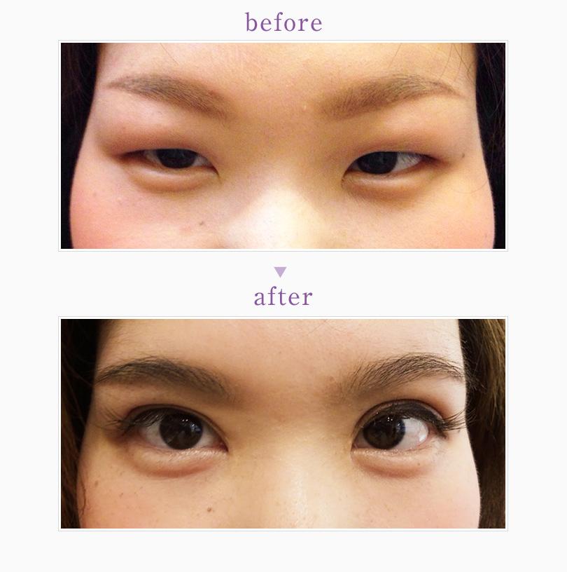目頭切開、瞼の脂肪除去の全切開の症例/ピュアメディカルクリニック
