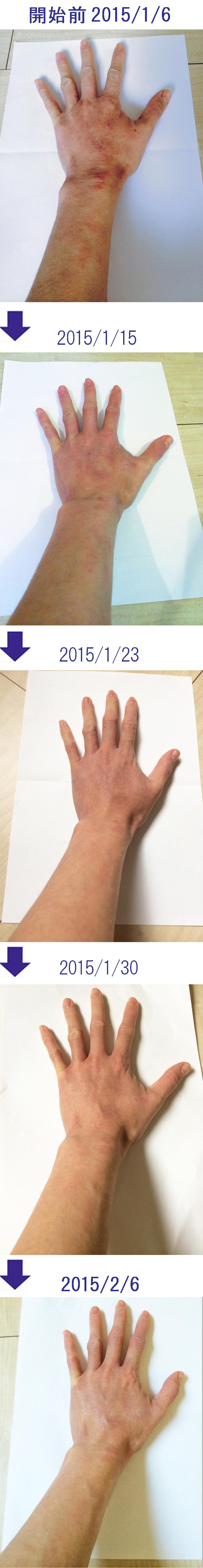 アトピー性皮膚炎の痒み原因対策化粧品・女性の腕・手/ダチョウ卵黄エキス/レイドラテ・ラ・ポー