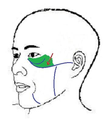 ligamentsrhytide.jpg