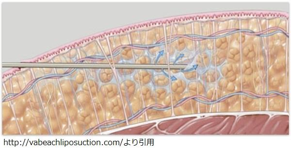 liposuctioninfiltration.jpg