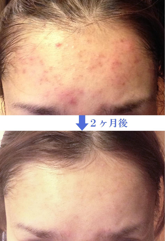 ニキビ改善症例3 ダチョウ抗体配合化粧品「レイドラテ・ラ・ポーアACクリア」
