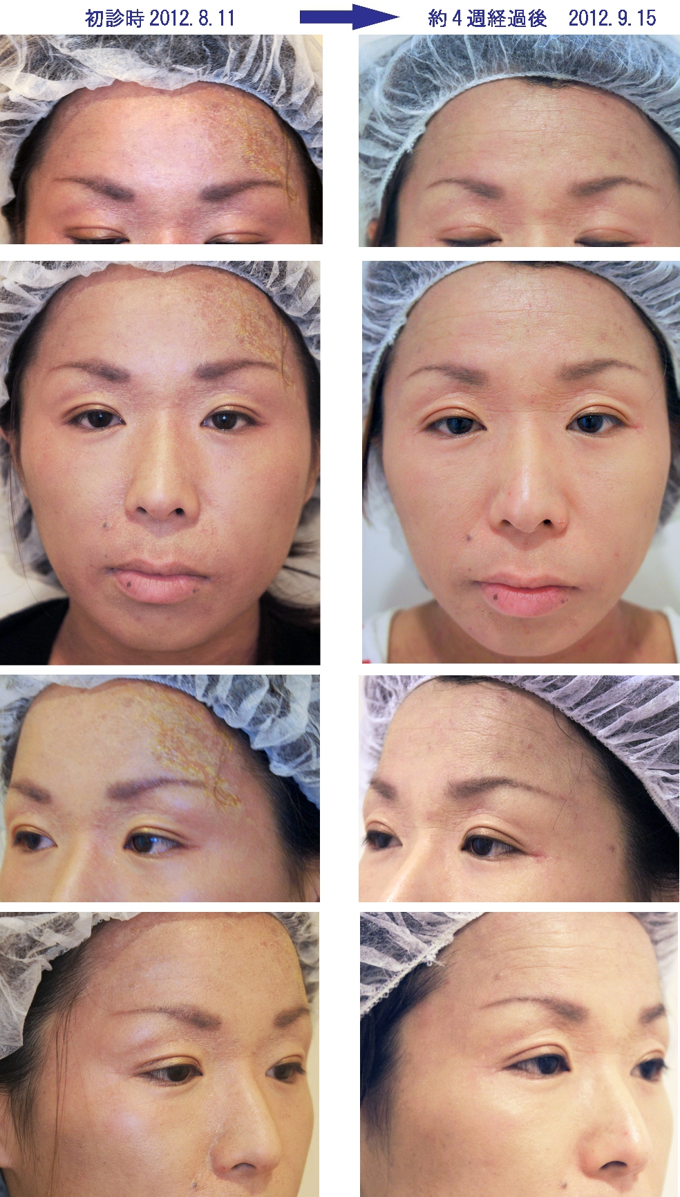 アトピー性皮膚炎の痒み原因対策化粧品・顔・おでこ・額/ダチョウ卵黄エキス/レイドラテ・ラ・ポー