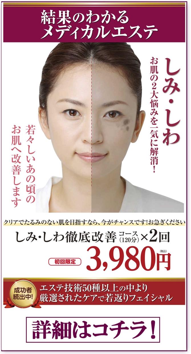 simisiwa2kai-3980-ue-670.jpg