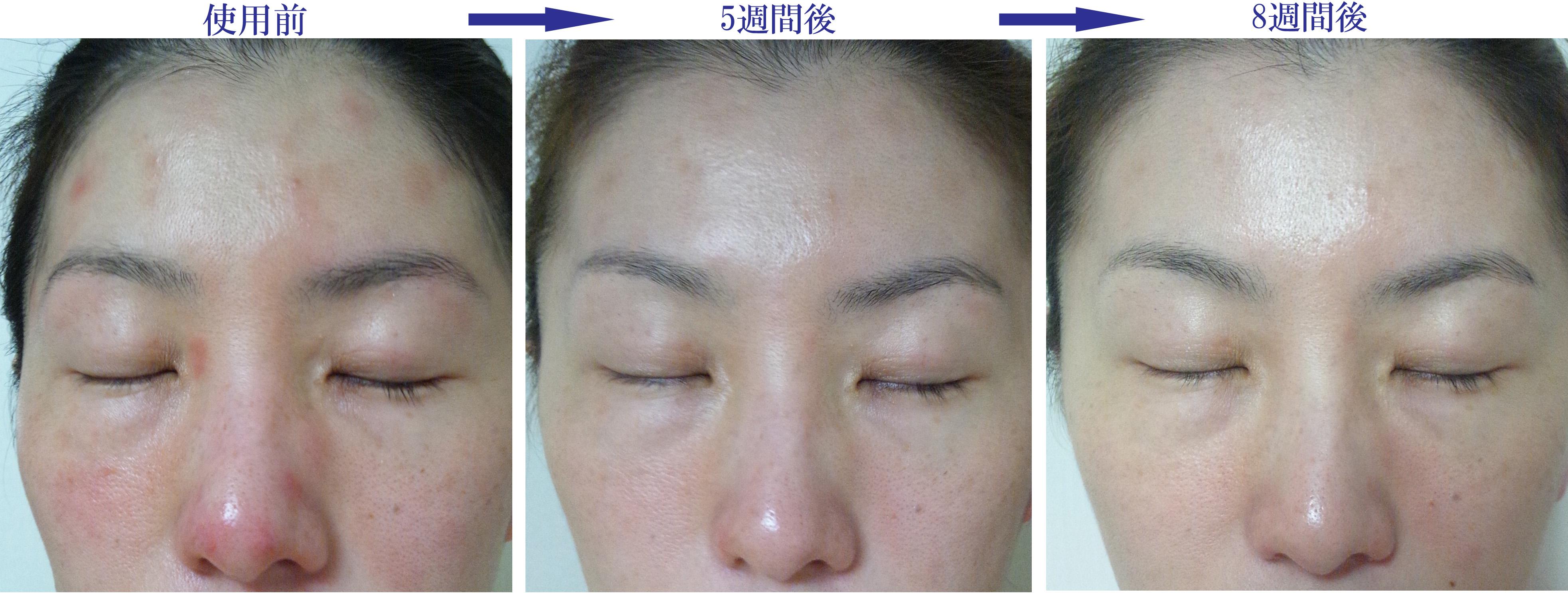 アトピー性皮膚炎改善症例16(顔・鼻のかゆみ・炎症の赤み改善)