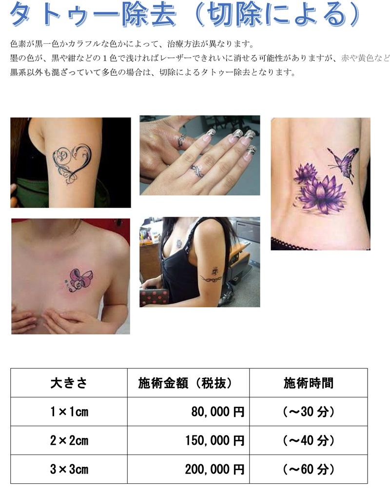 tatoo-jyokyo-s.jpg