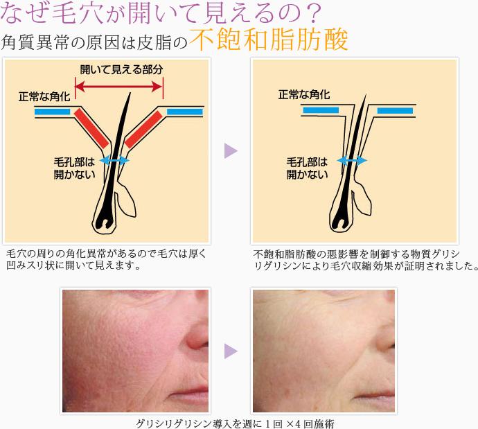 treatment1-8-12.jpg