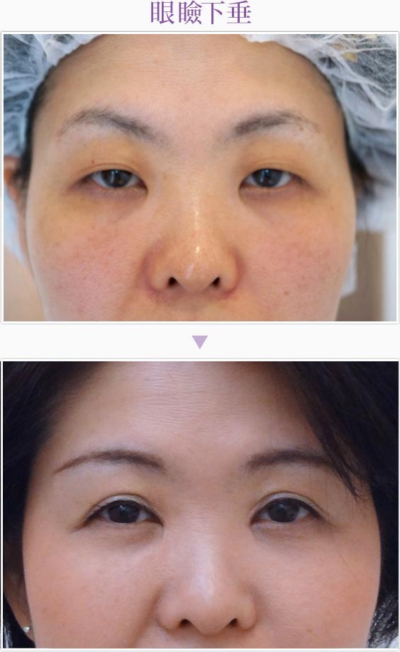 treatment3-6-51.jpg