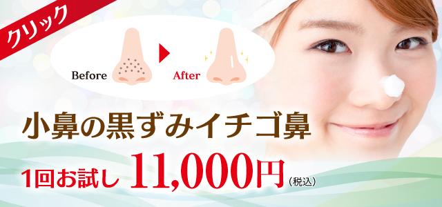 小鼻の黒ずみイチゴ鼻1回お試し10,000円
