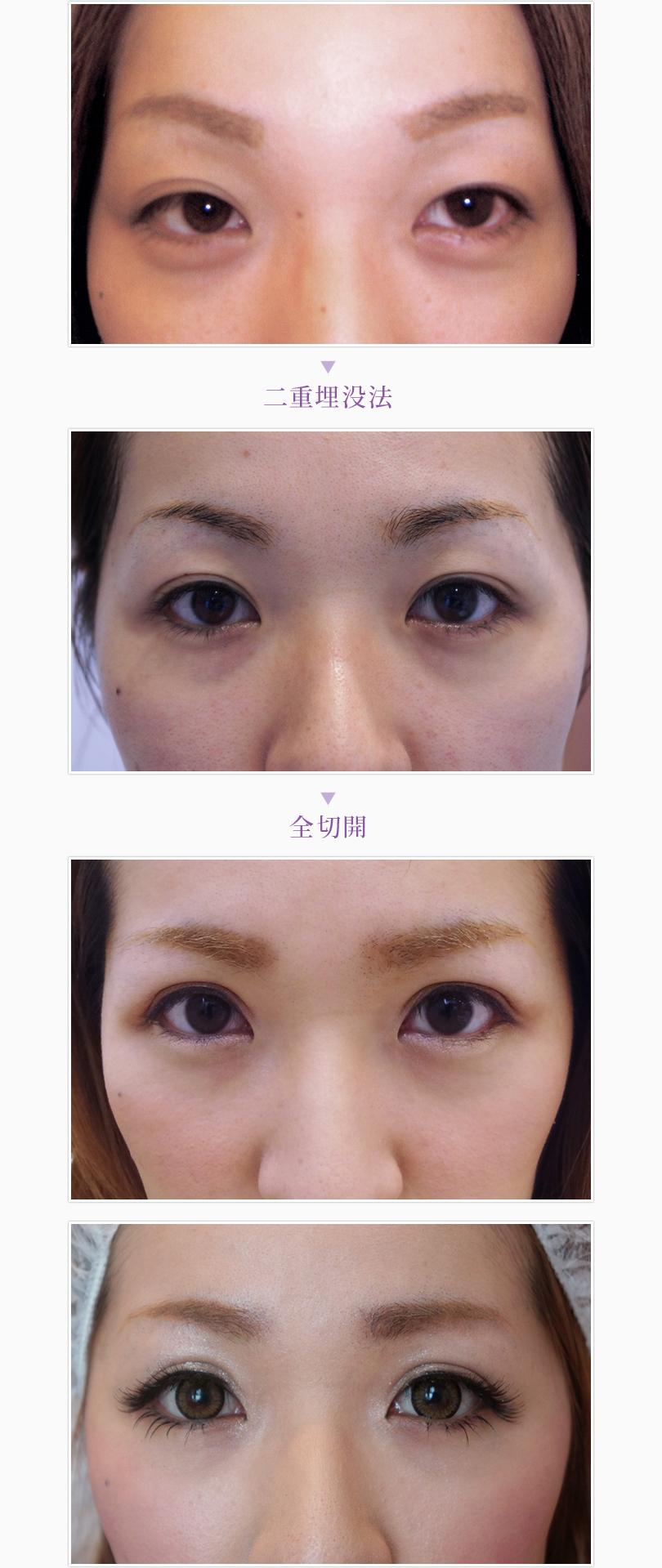 切開 二 傷跡 重 二重切開の傷跡の経過を症例写真で解説|共立美容外科