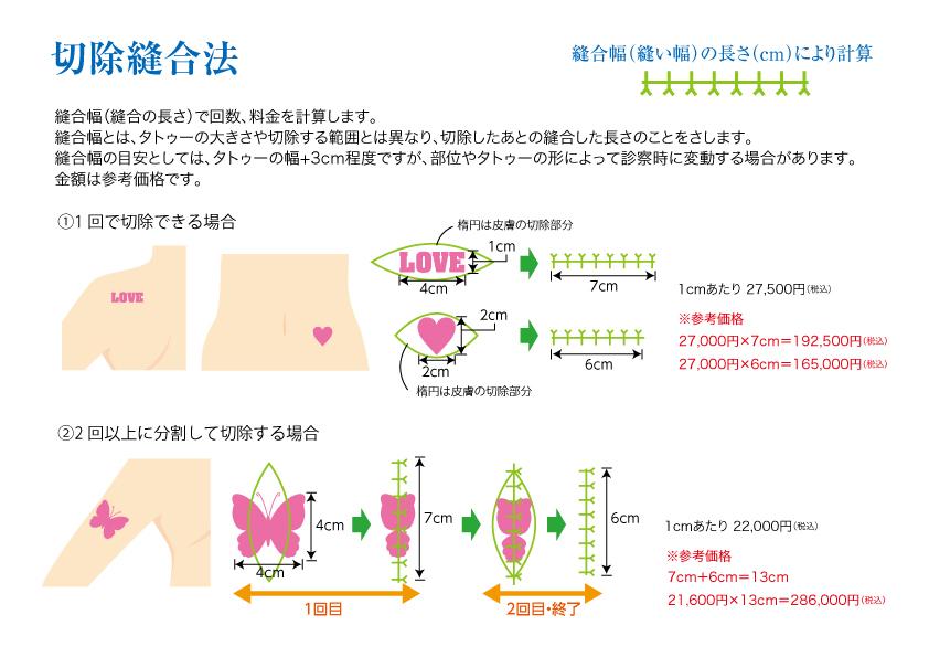 切除縫合法イメージ