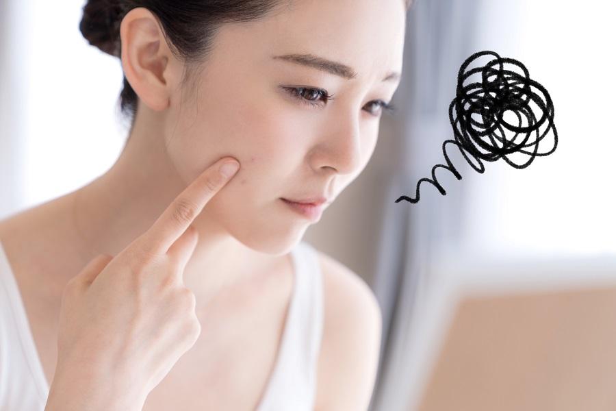 しみほくろ取りのお悩み治療で口コミ評判|美容外科皮膚科ピュアメディカルクリニック奈良橿原王寺