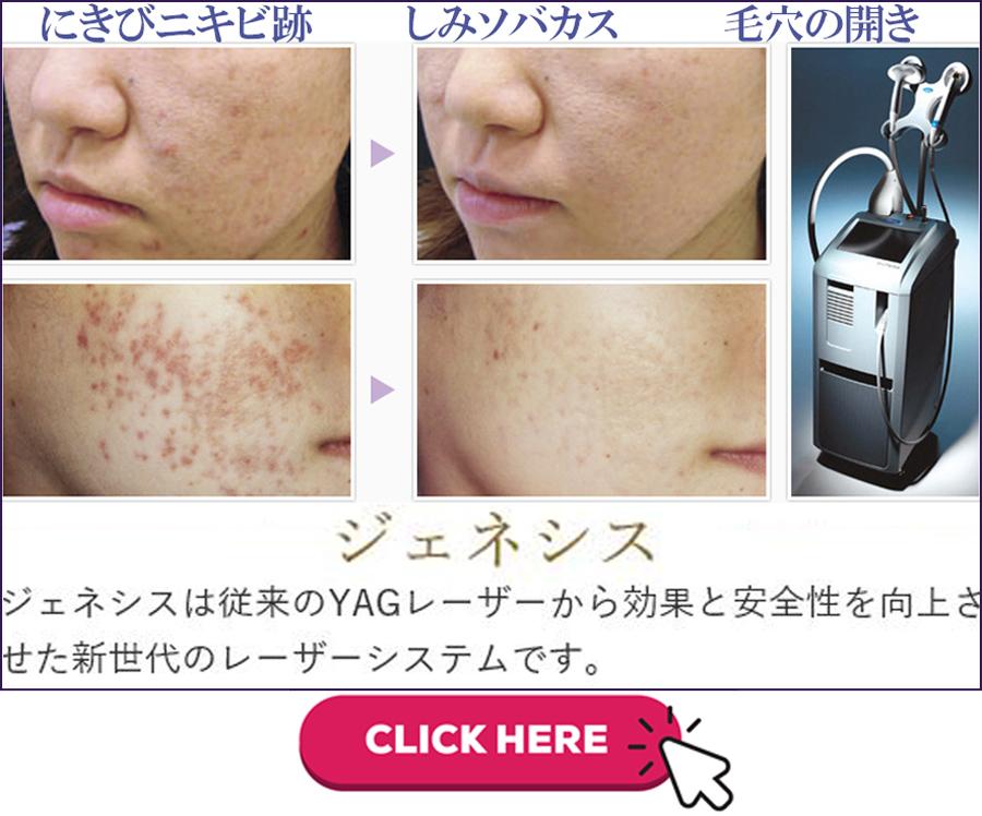 痛くないレーザーにきび毛穴治療ジェネシス|美容外科皮膚科ピュアメディカルクリニック奈良橿原王寺