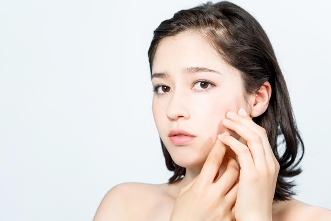 ニキビが出来る生活習慣と今からできる対策は?奈良の美容クリニック