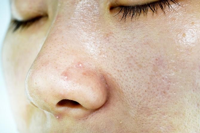 毛穴ケアに効果的な化粧品とは?コラーゲンやビタミンが効果的