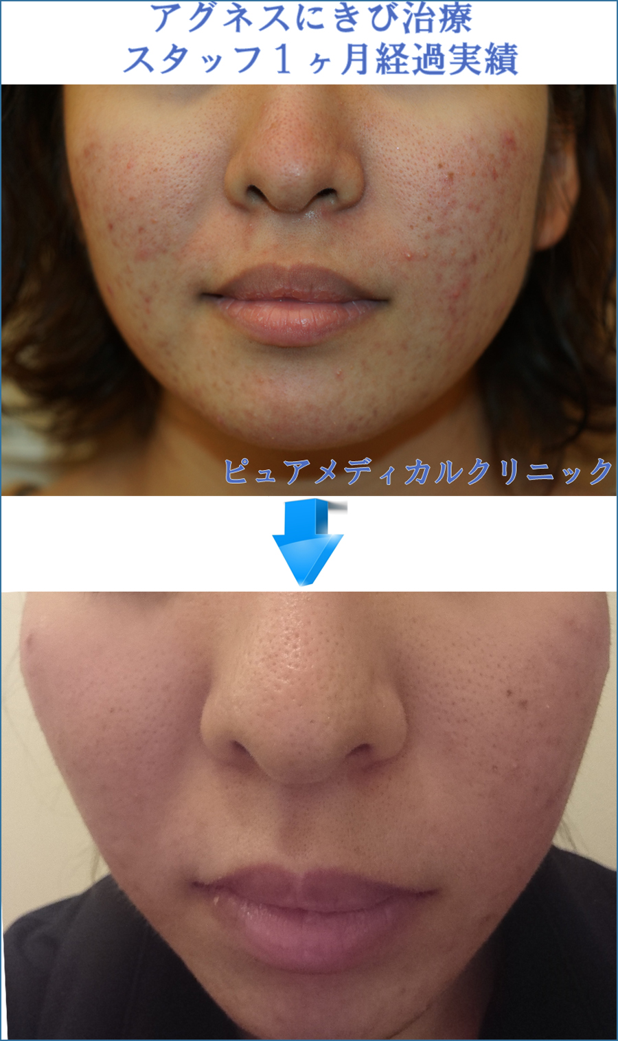 繰り返すにきびのお悩みで口コミ評判アグネス|治療成果|美容外科皮膚科ピュアメディカルクリニック奈良