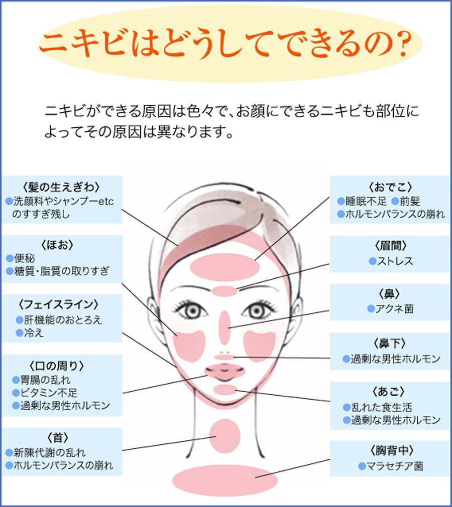 にきびはどうして出来る?|美容外科皮膚科ピュアメディカルクリニック奈良