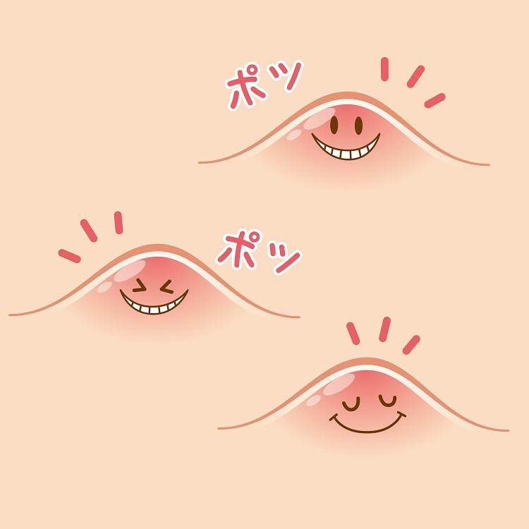 赤にきびのお悩み治療で口コミ評判|美容外科皮膚科ピュアメディカルクリニック