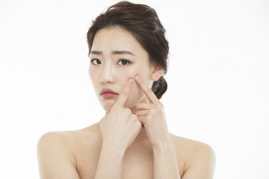 薬で治らない!繰り返すにきびの根本治療アグネス|美容外科皮膚科ピュアメディカルクリニック奈良