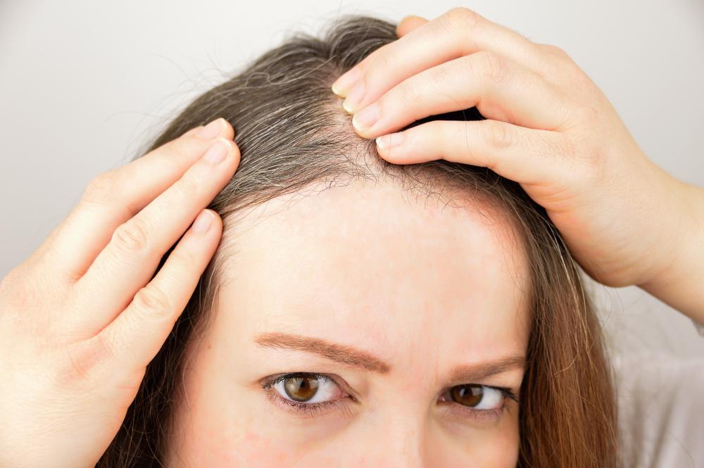 薄毛でお困りの方必見!効果から副作用までハーグ療法について徹底解説!