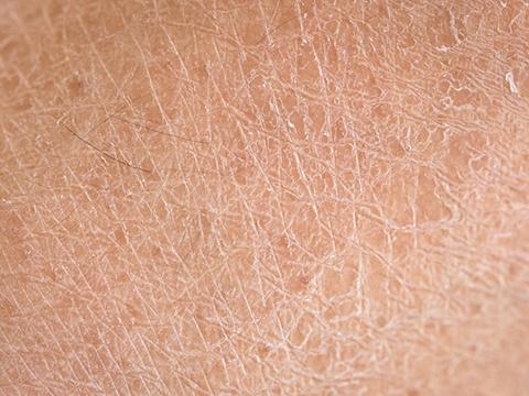 乾燥肌にお悩みの方はいらっしゃいませんか?スキンメソセラピーについて解説します!