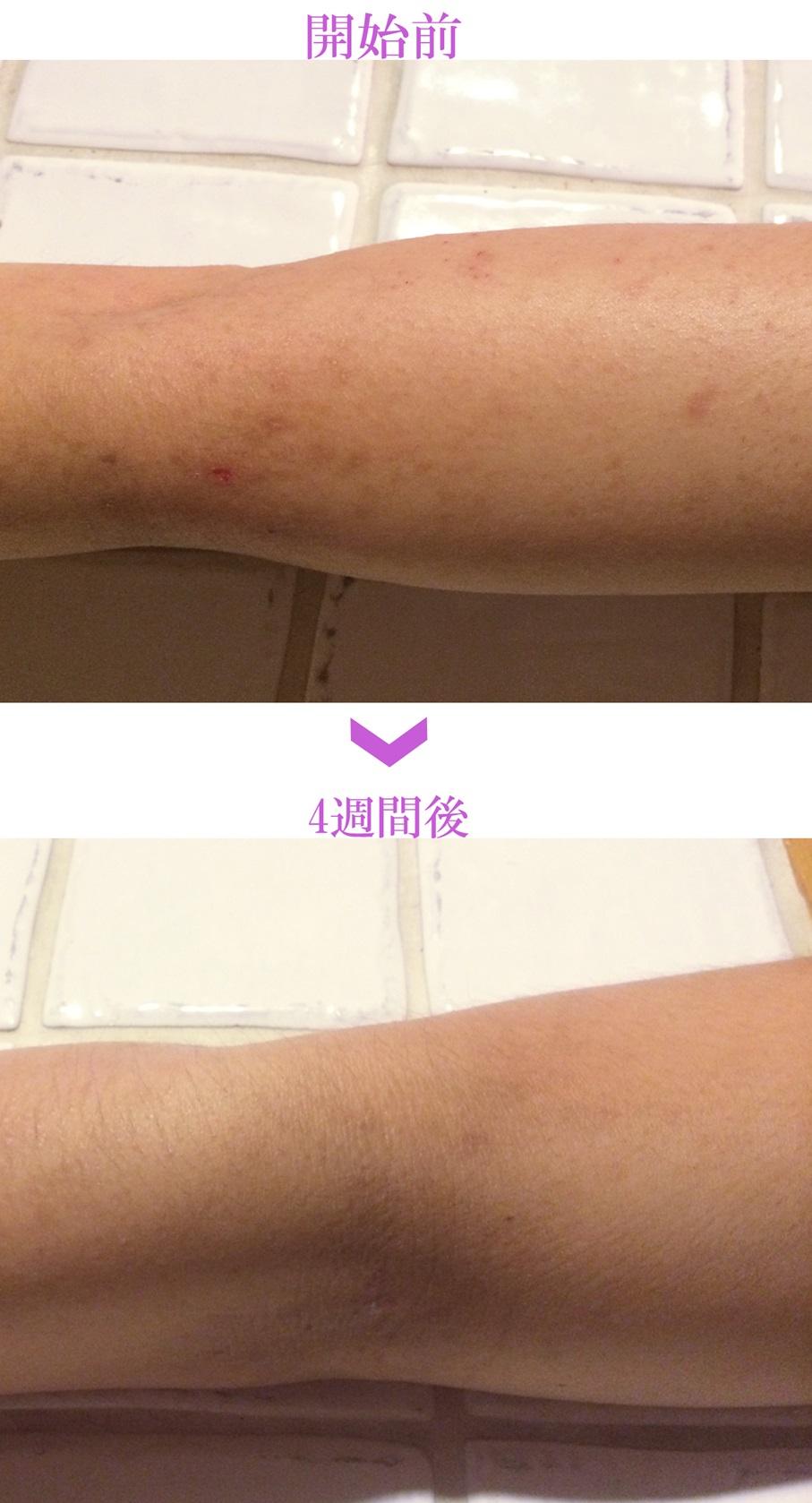 アトピー性皮膚炎の痒み原因対策化粧品・女性の腕/ダチョウ卵黄エキス/レイドラテ・ラ・ポー